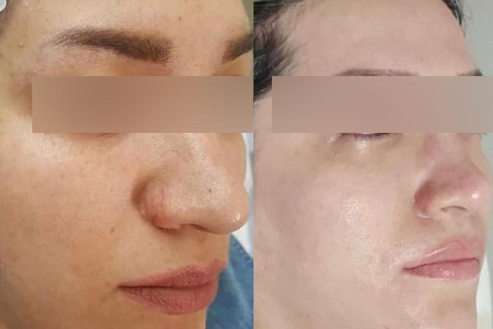 Lisa skin clinic, Calicut, BB-GLOW MESOTHERAPY