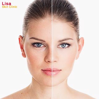 Lisa Skin Clinic, Kozhikode, Clinical Dermatology Services