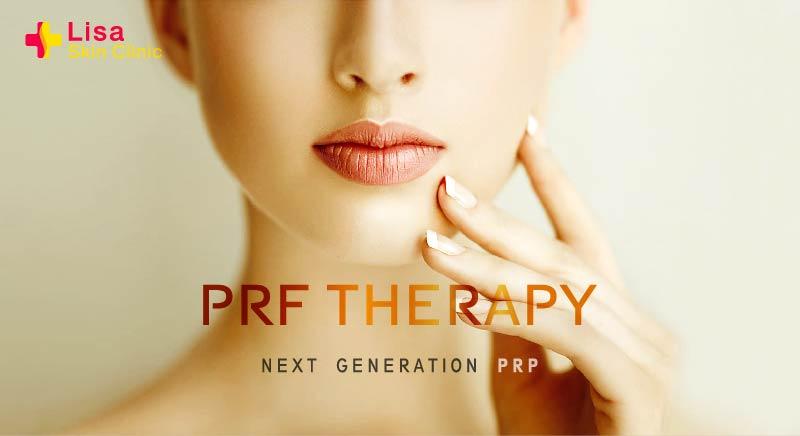 Lisa skin clinic, Calicut,Platelet Rich Fibrin (PRF) Therapy