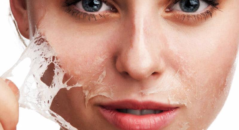 Lisa skin clinic, Calicut, Chemical Peel