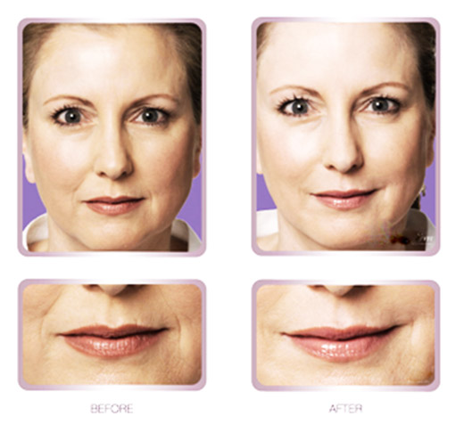 Lisa skin clinic, Calicut, Fillers