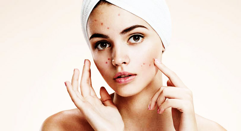 Lisa skin clinic, Calicut,Pimple treatment,Acne treatment